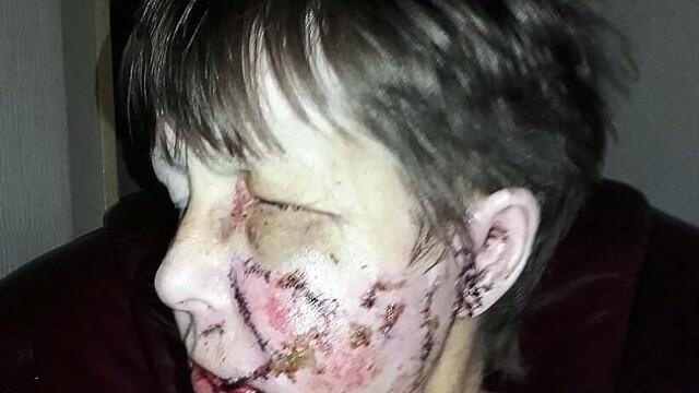 Femeie desfigurată de câinele violent al vecinilor. Fratele ei nu a recunoscut-o în urma atacului