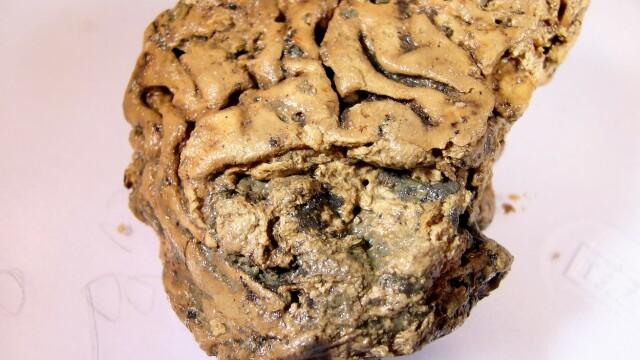 Secretele unui creier uman conservat 2.600 de ani într-un craniu. Ce au descoperit cercetătorii