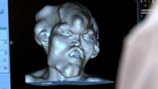 Omul cu chip de monstru! Doctorii: Este unic in lume - Imaginea 7