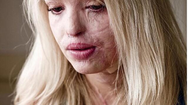 Aceasta femeie poate zambi din nou, dupa atacul care a desfigurat-o. Cum arata dupa 100 de operatii - Imaginea 1