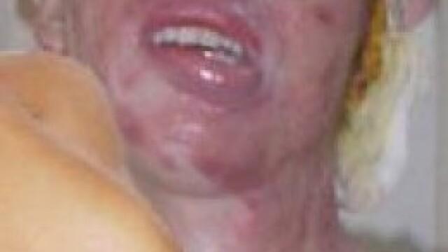Aceasta femeie poate zambi din nou, dupa atacul care a desfigurat-o. Cum arata dupa 100 de operatii - Imaginea 2