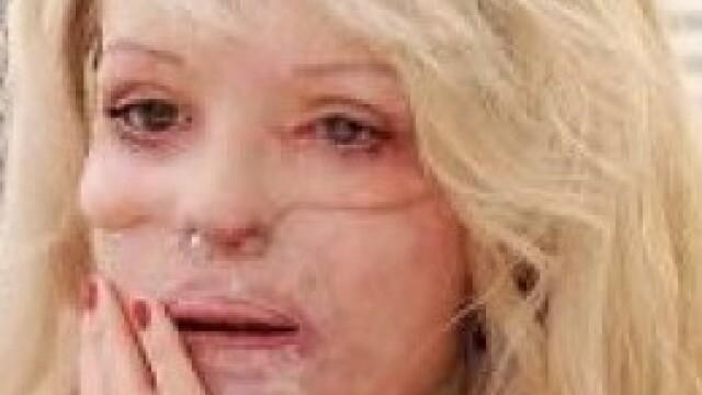 Aceasta femeie poate zambi din nou, dupa atacul care a desfigurat-o. Cum arata dupa 100 de operatii - Imaginea 3