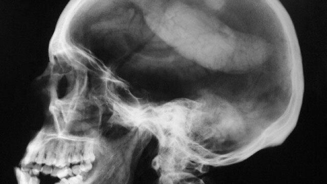 tomografie