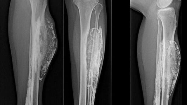 Ce a descoperit dupa 50 de ani de la momentul in care a fost muscata de un sarpe.Medicii au incercat sa gaseasca o explicatie