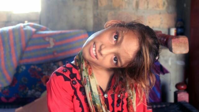 Cum arată fata care a rămas cu capul îndoit la 90 de grade. Boala rară de care suferă. FOTO - Imaginea 9