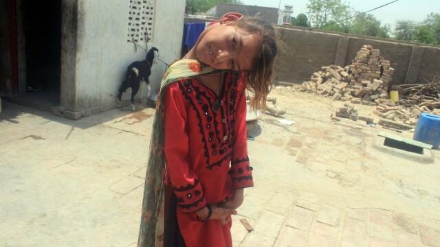 Cum arată fata care a rămas cu capul îndoit la 90 de grade. Boala rară de care suferă. FOTO - Imaginea 8