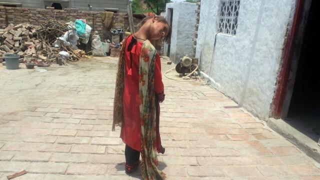 Cum arată fata care a rămas cu capul îndoit la 90 de grade. Boala rară de care suferă. FOTO - Imaginea 7