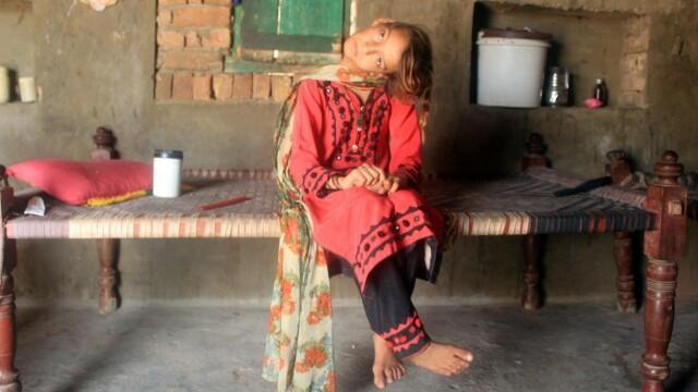 Cum arată fata care a rămas cu capul îndoit la 90 de grade. Boala rară de care suferă. FOTO - Imaginea 2