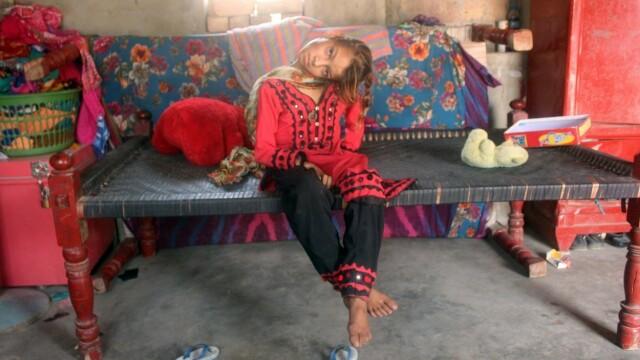 Cum arată fata care a rămas cu capul îndoit la 90 de grade. Boala rară de care suferă. FOTO - Imaginea 1