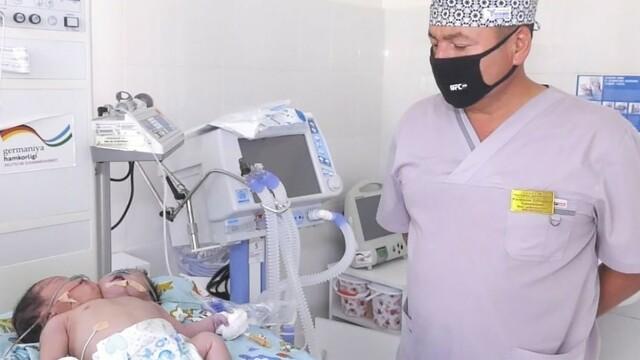 Medicii se confruntă cu un caz neobișnuit. Un bebeluș s-a născut cu 2 capete - Imaginea 2