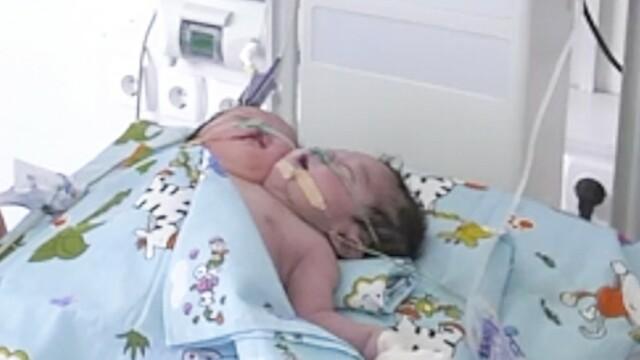 Medicii se confruntă cu un caz neobișnuit. Un bebeluș s-a născut cu 2 capete - Imaginea 3