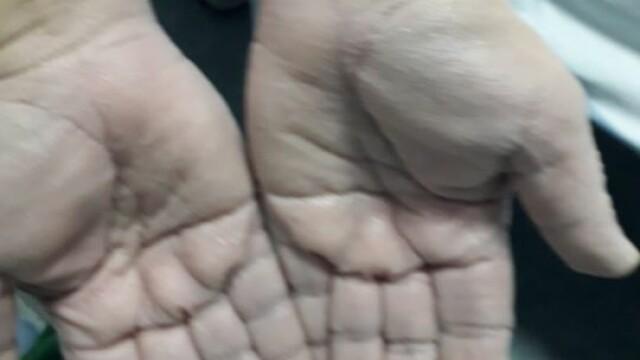 Imagini greu de privit cu medicii care poartă combinezoane anti Covid-19. Cum arată mâinile lor - Imaginea 2
