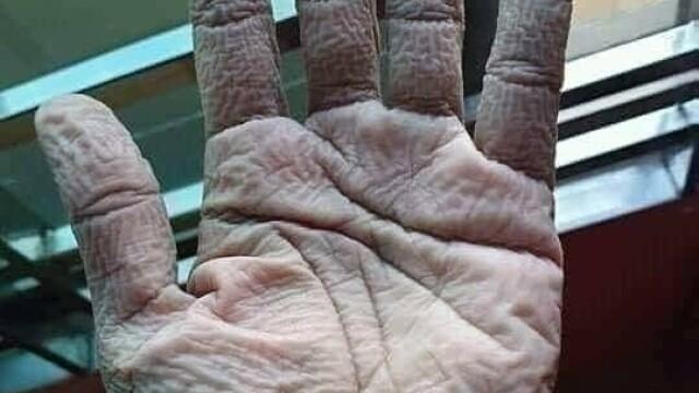 Imagini greu de privit cu medicii care poartă combinezoane anti Covid-19. Cum arată mâinile lor - Imaginea 3