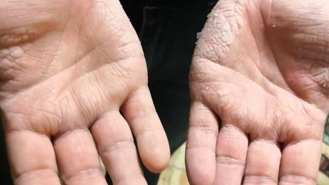 Imagini greu de privit cu medicii care poartă combinezoane anti Covid-19. Cum arată mâinile lor - Imaginea 4