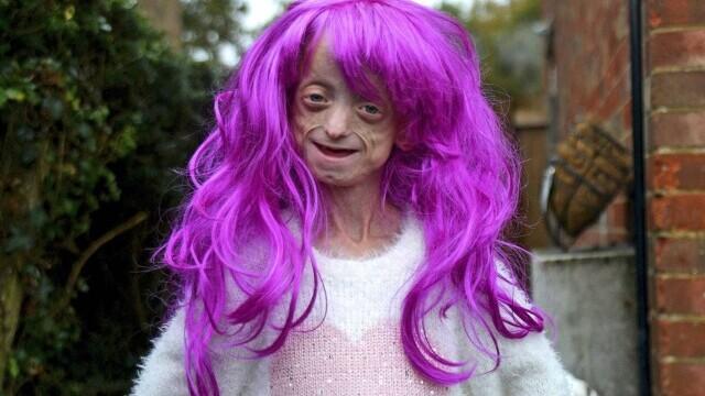 """O fată cu boala """"Benjamin Button"""" a murit la 18 ani, după ce corpul ei a ajuns la 144 ani - Imaginea 1"""