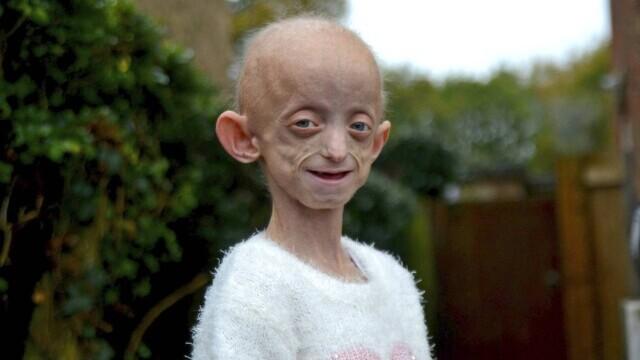 """O fată cu boala """"Benjamin Button"""" a murit la 18 ani, după ce corpul ei a ajuns la 144 ani - Imaginea 3"""