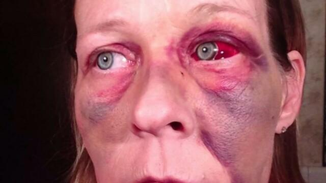 Angela lupta impotriva violentei domestice pe Facebook. Povestile cumplite pe care le spun fotografiile ei