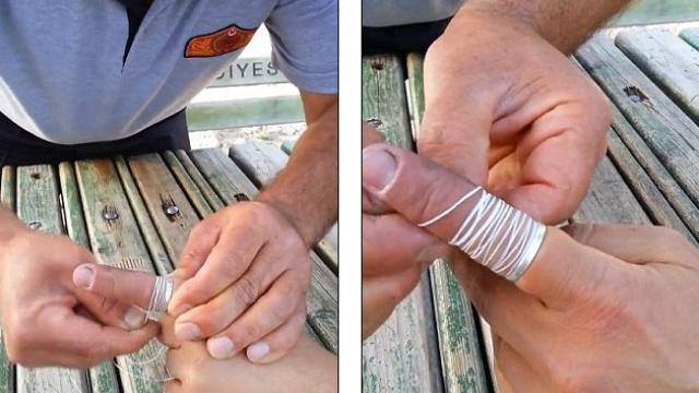 Ai un inel blocat pe deget? Un video devenit viral pe internet arata cum poate fi rezolvata problema fara sapun si margarina