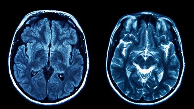 A ajuns la spital cu dureri de cap, iar medicii i-au spus ca mai are de trait 30 de minute. Ce au vazut la tomograf