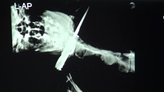 Un sucevean a mers la spital si a spus ca a fost injunghiat de un necunoscut. Cine il atacase de fapt