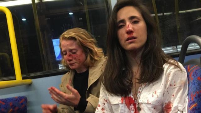 Tinere bătute şi umilite într-un autobuz pentru că nu au vrut să se sărute. Ce a urmat - Imaginea 1