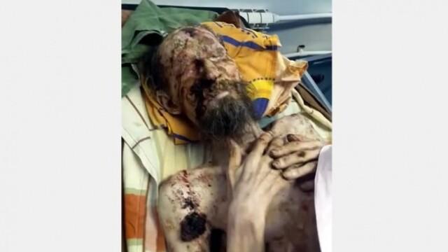 Cum arată bărbatul care a petrecut o lună în bârlogul ursului. Bestia îi fracturase coloana - 2