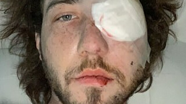 Un tânăr din SUA a rămas fără un ochi după ce a fost lovit de o grenadă a poliției - Imaginea 2