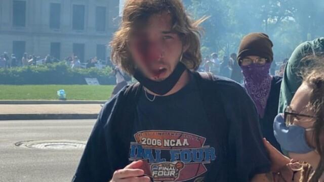 Un tânăr din SUA a rămas fără un ochi după ce a fost lovit de o grenadă a poliției - Imaginea 3