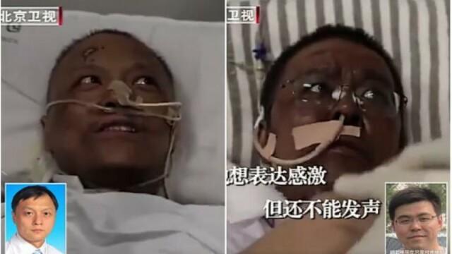 A murit unul din medicii chinezi a căror piele s-a înnegrit din cauza tratamentului pentru Covid-19