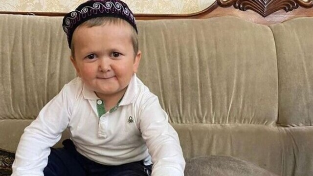 Un băiat cu o boală rară a devenit senzație pe Internet. Un medic spune de ce pare și copil, și adult în același timp