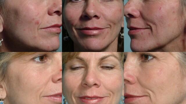 Leziuni ale acneii
