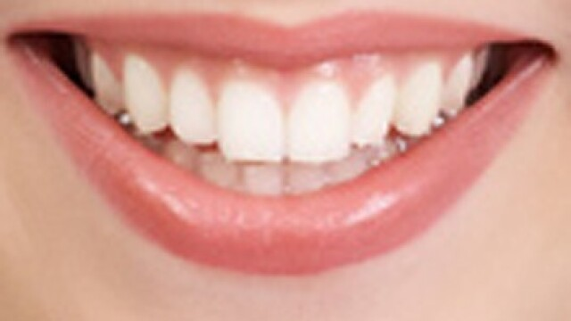 Fluorura de staniu face dintii mai puternici