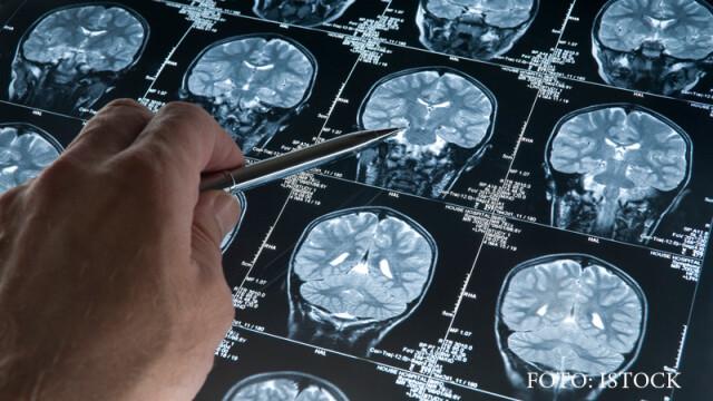EEG, scanare a creierului