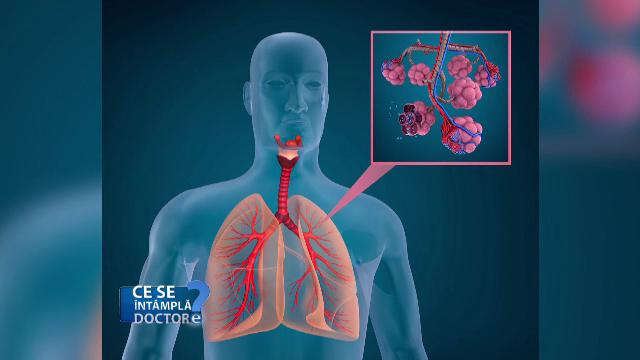OMS a pus astmul pe lista bolilor care fac pacienții mai vulnerabili la Covid-19