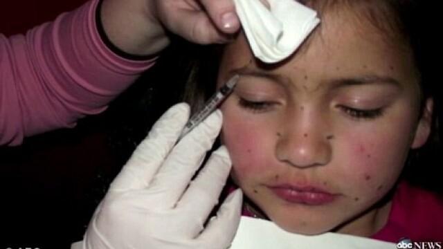 Soc in SUA. O fetita de 8 ani, injectata cu botox pentru un concurs. FOTO - Imaginea 1
