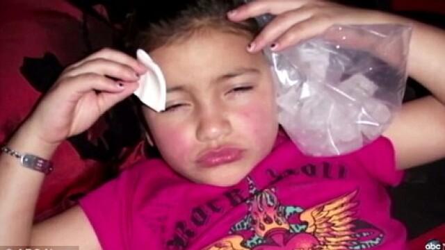 Soc in SUA. O fetita de 8 ani, injectata cu botox pentru un concurs. FOTO - Imaginea 3