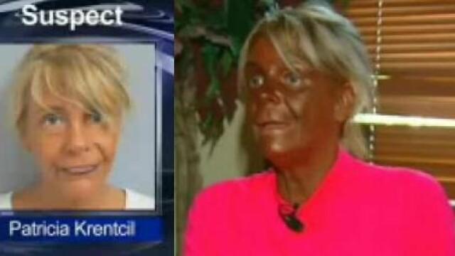 Cum arata acum cea mai bronzata femeie din lume, la 3 luni dupa ce a socat SUA cu aceasta poza.VIDEO - Imaginea 3