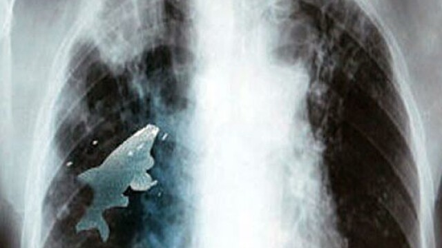 Pestele viu din plamanul unui baiat din India. Chirurgul sau: \