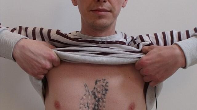 Si-a injectat o substanta chimica in corp pentru a indeparta un tatuaj. Cum s-a trezit a doua zi. - Imaginea 2