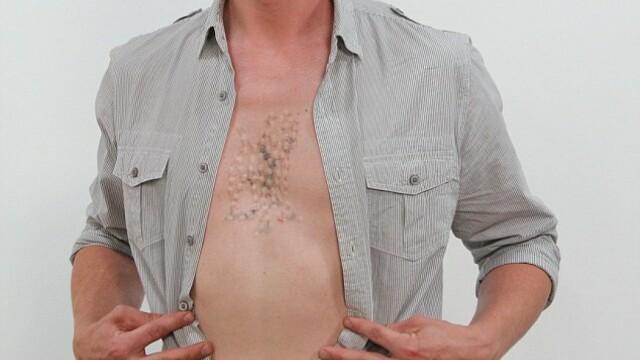 Si-a injectat o substanta chimica in corp pentru a indeparta un tatuaj. Cum s-a trezit a doua zi. - Imaginea 3