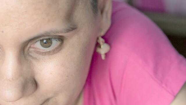 Florentina Dima, o tanara care lupta de 13 ani cu cancerul, are nevoie de ajutorul nostru - Imaginea 2