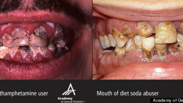 Studiu: Sucurile dietetice au acelasi efect asupra dintilor ca metamfetaminele si cocaina