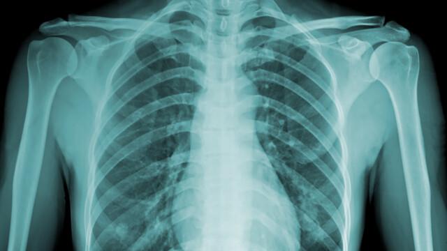 S-a dus la spital, dupa ce a simtit dureri in piept, crezand ca face infarct. Descoperirea socanta facuta la radiografie