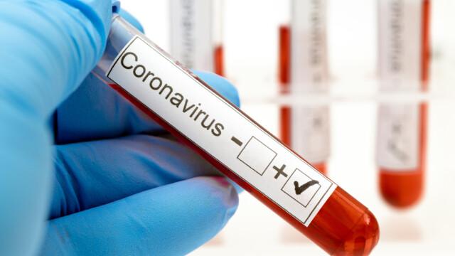 Aproape 80 de români care lucrează într-o localitate din Germania, testați pozitiv pentru noul coronavirus