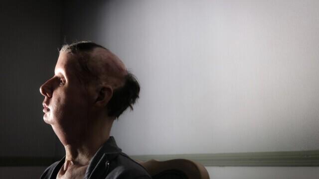 Un cimpanzeu a mutilat o femeie din SUA. Victima a pierdut jumătate din sânge și a orbit - Imaginea 2