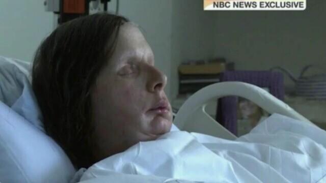 Un cimpanzeu a mutilat o femeie din SUA. Victima a pierdut jumătate din sânge și a orbit - Imaginea 3