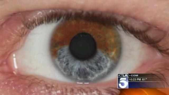 Procedura care transforma visele in realitate. Ochii caprui pot fi schimbati permanent in albastri