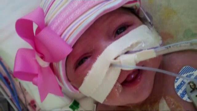 O fetita s-a nascut cu inima in afara corpului. Medicii, uimiti ca a supravietuit