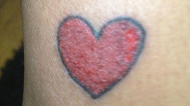 Reactia alergica violenta pe care facut-o o femeie dupa ce s-a tatuat. GALERIE FOTO - Imaginea 1