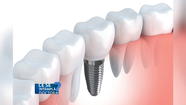 Puteti face o investigatie RMN chiar daca aveti implanturi dentare. Care sunt riscurile de pierdere a unui dinte pus astfel